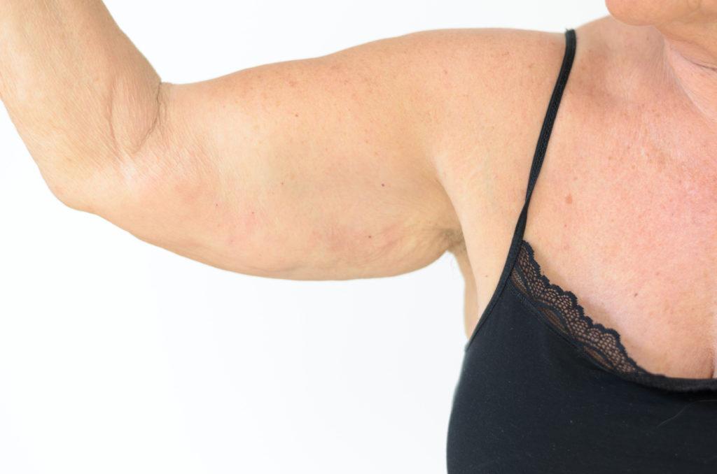 ltere-frau-zeigt-ihren-arm-mit-elastizittsverlust