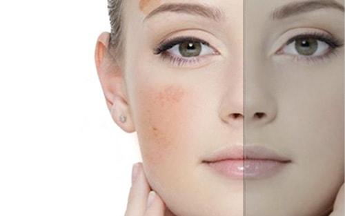 peeling-peau-du-visage-tache-pigmentaire-5503740