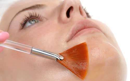probleme-d-acne-3141544