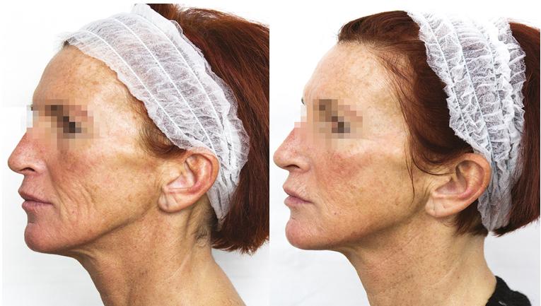 prx-t33-biorevitalisation-visage-avant-apres-petit-format-4004998