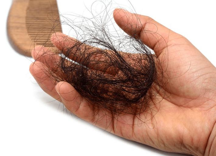chute-de-cheveux-saisonniere-perte-de-cheveux-touffe-meche-brossage-5006288