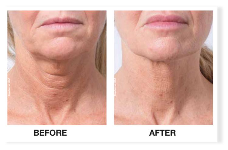 profhilo-neck-3013589
