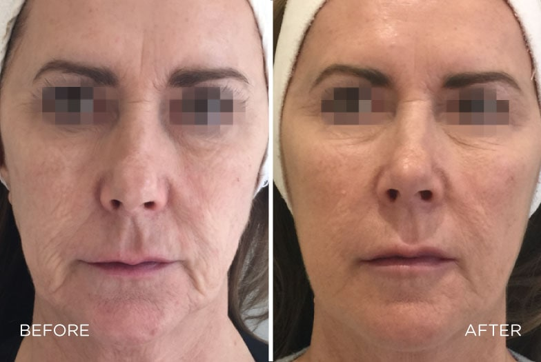 profhilo-skin-boosting-injections-header-7815817