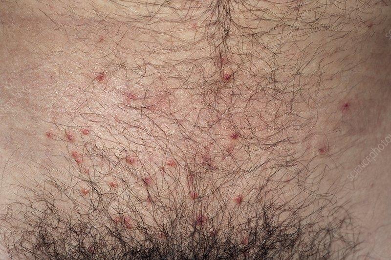 molluscum-contagiosum-viral-infection